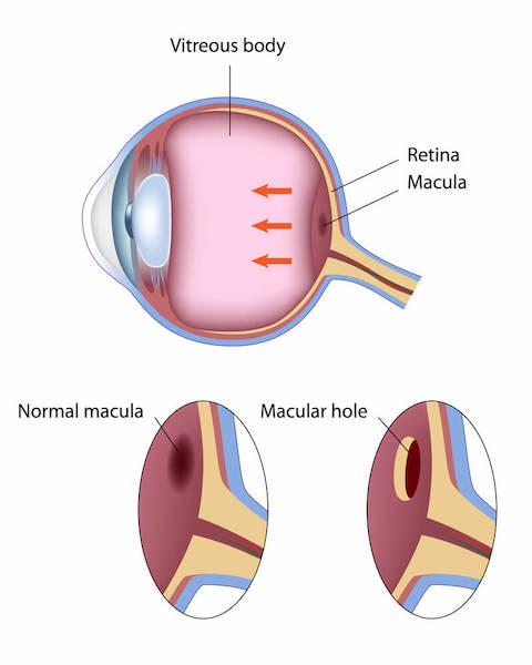 Diagram of macular hole.